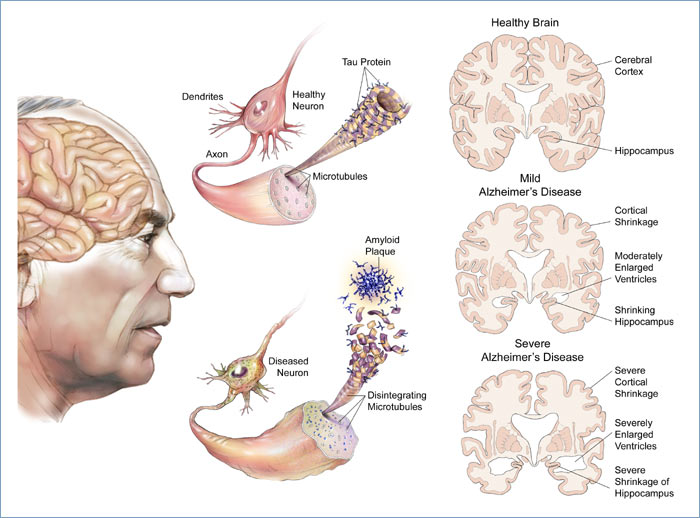 an examination of the causes symptoms treatment and researches on alzheimers disease Brain tumors, and blood vessel disease in the brain can cause ad-like symptoms some , call the nia's alzheimer's disease education these centers carry out a wide range of research, including studies of the causes, diagnosis, treatment , and management.